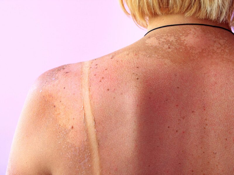 Sun Damage and Age Spots