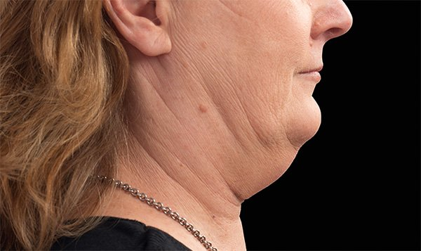 chin Before Treatment