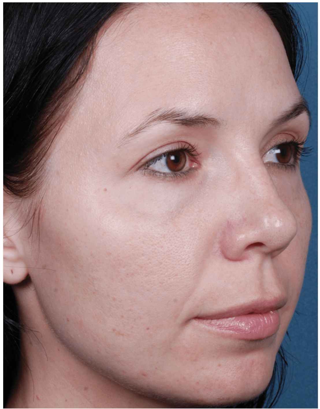 Before and After-Obagi Blue Peel